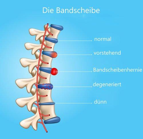 Bandscheiben-degeneration-Neurologe-Piatti-Wien
